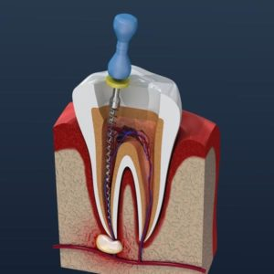 root canal facts