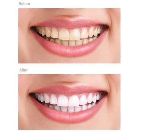 teeth whitening tunbridge wells